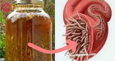 Vücuttaki enfeksiyonu ve parazitleri öldüren en güçlü doğal antibiyotik Şimdiye Kadarki En Güçlü Doğal Antibiyotik! sarımsak zencefil soğan antibiyotik