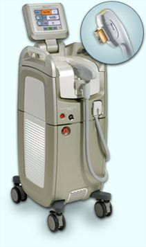 alma laser hair removal machine