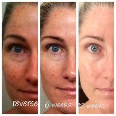 Check out this amazing before and after!! I Love how these products are changing skin and changing lives of people EVERY day!! If you haven't tried these products for wrinkles and fine lines, acne, brown spots or sun damage, and skin sensitivities like eczema, then today is the day!!! Order as a preferred customer before the end of the month and get a FREE mineral peptide powder or sunless foaming Tanner. #realpeoplerealresults #antiaging #thisisREAL