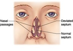 midline defects and deviated septum