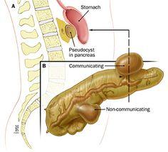 Acute Pancreatitis: Therapy