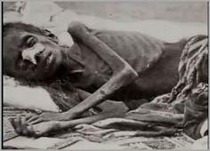 Criança Quase morta de Fome na Índia.