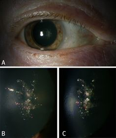 """Christmas Tree"" cataract consists of highly reflective, iridescent polychromic crystals (""needles"") crisscrossing the fibres within the lens cortex and are found in higher prevalence in patients with myotonic dystrophy"