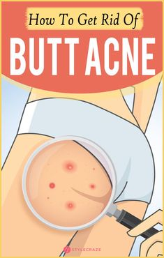 Natural Acne Remedies How To Get Rid Of Butt Acne Fast? So, here we are to your rescue, yet again! We have listed some of the best home remedies that can help you combat butt acne – and also your worries! Back Acne Treatment, Natural Acne Treatment, Spot Treatment, Skin Treatments, How To Get Rid Of Pimples, How To Get Rid Of Body Acne, Natural Acne Remedies, Back Acne Remedies, Skin Care