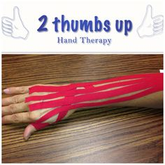 Kinesiotape is used to decrease pain & to support the wrist & hand at 2 Thumbs up hand therapy in Plymouth & Norwell, MA.