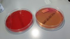 Enterokok. Small colonies on blood plate and lactose + on macconkey.