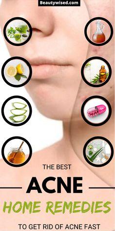 Pimple Mask, Face Mask For Pimples, Pimple Scars, Acne Face Mask, Face Masks, Overnight Pimple Remedies, Home Remedies For Pimples, Pimples Overnight, Acne Remedies