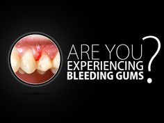 Bleeding gums when brushing is a sign of gingivitis. Your gums are not healthy if this happens. See your dentist and maintain proper oral care.