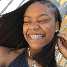 Cute Braces Colors, Cute Girls With Braces, Cute Mixed Girls, Braces Girls, Braces Smile, Teeth Braces, Dental Braces, Curly Hair Styles, Natural Hair Styles