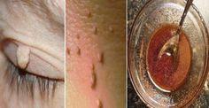 Las verrugas no son peligrosas, sólo puede ser un problema estético.     Por lo general, aparec...