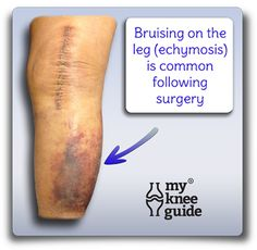 Knee Pain: Bruising on the leg after knee replacement surgery. Knee Replacement Recovery, Knee Replacement Surgery, Joint Replacement, Knee Surgery Recovery, Acl Surgery, Knee Operation, Recovery Humor, Knee Arthritis, Knee Exercises