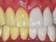 Ben je je gele tanden ook zat? Hier zijn 9 manieren om het op een natuurlijke wijze op te lossen !
