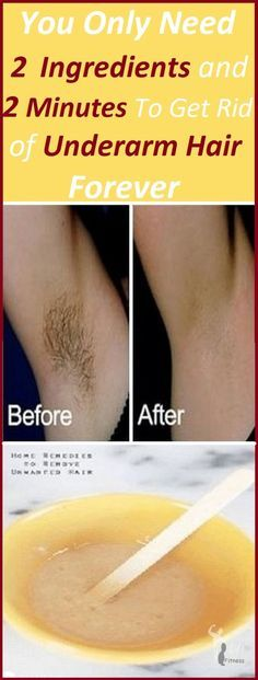 Every girl wants to get rid of the underarm hair once and for all. Fortunately, there are various ways to get rid of this issue. However, we always try to stick to the natural remedies and this aesthetic issue has also a natural solution. But first, let's see why there are hair on the armpits.