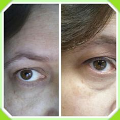 Using Lip & Eye and Preventage for 3 months so far...look how amazing my skin around my eyes have changed.