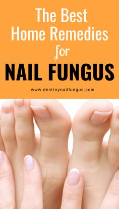 Have you contracted nail fungus? You are certainly not alone – over 30 million people worldwide have onychomycosis, also known as nail fungus. Many people turn to home remedies for a variety of reasons. Let's Get The Best Home Remedies for Nail Fungus. Home Remedies For Ringworm, Foot Remedies, Natural Home Remedies, Herbal Remedies, Health Remedies, Get Rid Of Ringworm, Toenail Fungus Treatment, Natural Treatments, Toe Nails