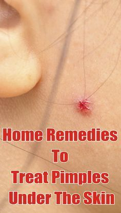 How to get rid of under the skin pimples effectively?