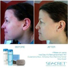 Are you having problems with acne or know someone that is I have the solution for you or that friend. Contact me christy828@outlook.com or text me at 408-891-9229  website: www.seacretdirect.com/Elitebeauty