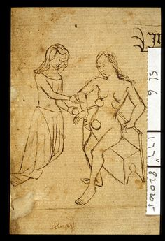 Detail of a woman physician treating a female patient. Sloane 6 John of Arderne, Medical treatise England; 2nd quarter of the 15th century.