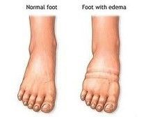 Do you suffer from lymphedema and haven't found a livable solution to your leg and foot swelling? Vein specialists can help determine if you have venous insufficiency which can further complicate lymphedema.
