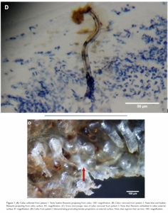 83 Best morgellons disease images in 2015 | Delusional