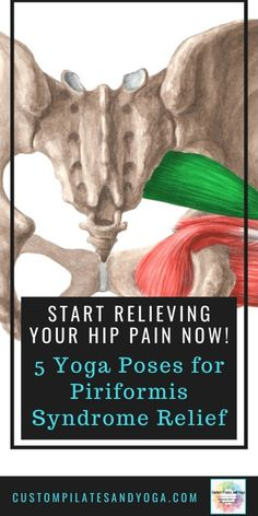 Piriformis syndrome is a source of pain for over 200000 people a year. Luckily it's easy to fix. Try these 5 yoga poses for piriformis syndrome relief. Piriformis Exercises, Hip Flexor Exercises, Piriformis Muscle, Back Pain Exercises, Band Exercises, Stretching Exercises, Stretches, Sciatica Relief, Pain Relief