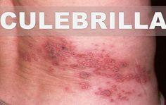 Imagenes de culebrinas herpes dating