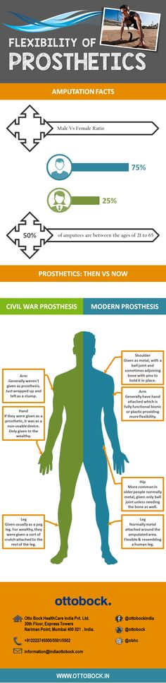 Prosthetics Now Vs Then - the infographic represents how prosthetic technology has evolved over years.