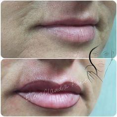 #girls #food #moda #italia #fitness #body #Life #estetica #ricostruzione #unghie #belive #nails #gel #art #gel #tattoo #tatuaggio #ink #truccopermanente #brows #permanentmakeup #makeup #all_pix #tag #eyeliner #lips #love #Napoli