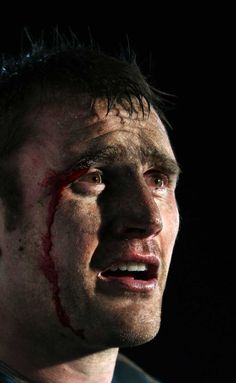 Al Kellock -- Glasgow Warriors and Scotland. The face of rugby