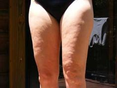 Maneras efectivas de reducir la celulitis | Cuidar de tu belleza es facilisimo.com