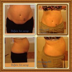 """Before 1st wrap and after 3rd on my stomach. I had 2 c-section 14 1/2 months apart. The last c-section was January 2013. My """"pouch"""" is almost gone!"""