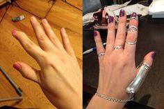 Ask-a-Zebra has Ehlers Danlos Syndrome (EDS), which makes her joints and muscles prone to painful dislocation. In a great post, she documents her experience with Silver Ring Splints, custom-made je…