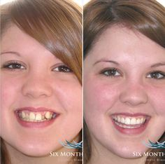 Before and After Teeth Straightening, Orthodontics, Dental, Faces, Face, Dentistry, Dentist Clinic, Dental Health, Facial