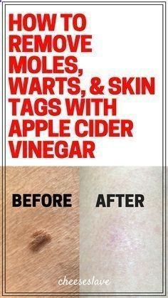 How to Remove Moles Warts and Skin Tags with Apple Cider Vinegar wartremovalpro.co...