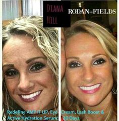✨Real People ~ Real Results!!✨ Meet Diana... It took her ONE MONTH of using Rodan + Fields Redefine Regimen with AMP MD Roller, Multifunction Eye Cream, Lash Boost, and Active Hydration Serum to get these results!! She was serious about changing her skin and she got SERIOUS results!!! So what are you waiting for?! Are you ready to get your GLOW back?! Message me ~ Let's get YOU started today!!! ✨ #RedefineYourAge #AgingBackwards #FountainofYouth #RFHydrationNation