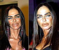 Celebrity plastic surgery epic fail - Page 5 - www.tombraiderforums.com