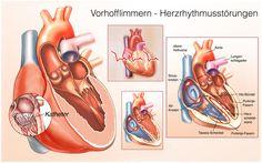 Herzstolpern, Herzrasen, Leistungsminderung und auch schwere Komplikationen wie Schlaganfälle können die Folge sein.