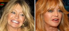When the Goldie Hawn plastic surgery rumors started doing rounds, people went looking for proof that she had indeed had the procedures. Goldie Hawn, Online Casino, Plastic Surgery, Clear Skin, Search Engine, Projects To Try, Drink, Website, Lady