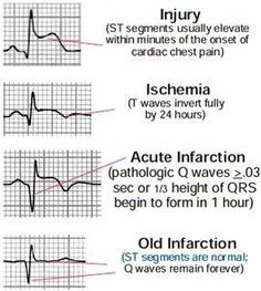 "some of the possible ECG changes in cardiac injury. ""studentparamedicsaus: ""Just some of the possible ECG changes in cardiac injury. Cardiac Nursing, Nursing Mnemonics, Ekg Interpretation, Ecg, Nursing Information, Nursing School Notes, Nursing Schools, Critical Care Nursing, Emergency Medicine"