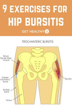9 Best Exercises For Hip Bursitis , Do you get pain in your hip when you are lying down or immediately when you stand up after sitting for a while? You might have hip bursitis. Fitness Workouts, Hip Workout, Fitness Diet, At Home Workouts, Health Fitness, Workout Body, Street Workout, Fitness Plan, Hip Bursitis Exercises