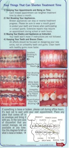 Common braces and orthodontic terms and what they mean braces ccuart Choice Image