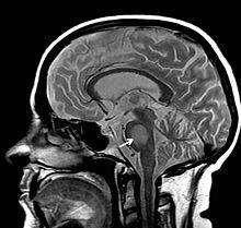 Zentrale pontine Myelinolyse #zu schnelle Korrektur von der Hyponatriämie