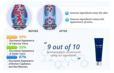 Venorex Review - Venorex Varicose Vein Defense Cream Review