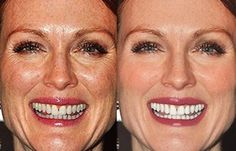 Julianne Moore, 53 before and after photoshoped for publication