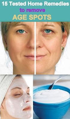 15 Useful Home Remedies for Removing Age Spots   Pinterest Goodies