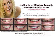 Need tooth pulled teeth cleaning solution,dental plaque microscope impacted tooth pain,gum disease photos bad breath solution. Impacted Tooth, Snap On Smile, Tooth Pulled, Veneers Teeth, Missing Teeth, Porcelain Veneers, Tooth Pain, Melbourne Cbd, Best Dentist