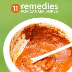 11 Home Remedies to Get Rid of Canker Sores herbsandoilshub.c...   This is a great discussion of home remedies for canker sores. Claire includes a lot of different natural remedies.
