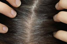 Grays aren't the only part of aging you need to worry about; your body hair goes through many other changes. Learn how your body hair ages with you. Grey Hair Treatment, Covering Gray Hair, Food Coloring Hair Dye, What Causes Gray Hair, Premature Grey Hair, Color Your Hair, Going Gray, Crazy Hair, Hair Oil