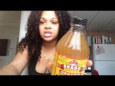 ▶ Apple Cider Vinegar For Tinea Versicolor - YouTube