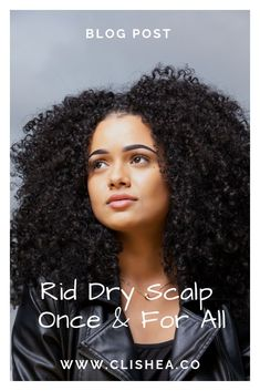One of the most annoying hair problems you can have. Read more … – Dry scalp? One of the most annoying hair problems you can have. Natural Hair Types, Natural Hair Care, Heatless Hairstyles, Afro Hairstyles, Medium Hair Styles, Curly Hair Styles, Hair Topic, Type 4 Hair, Hair Issues